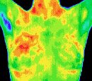 Los Angeles Breast Thermography Centers - Santa Barbara, Ventura, Los Angeles